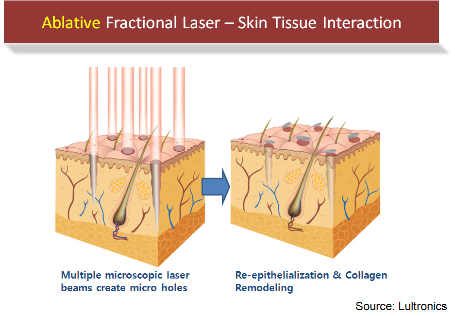 Ablative Fractional Laser