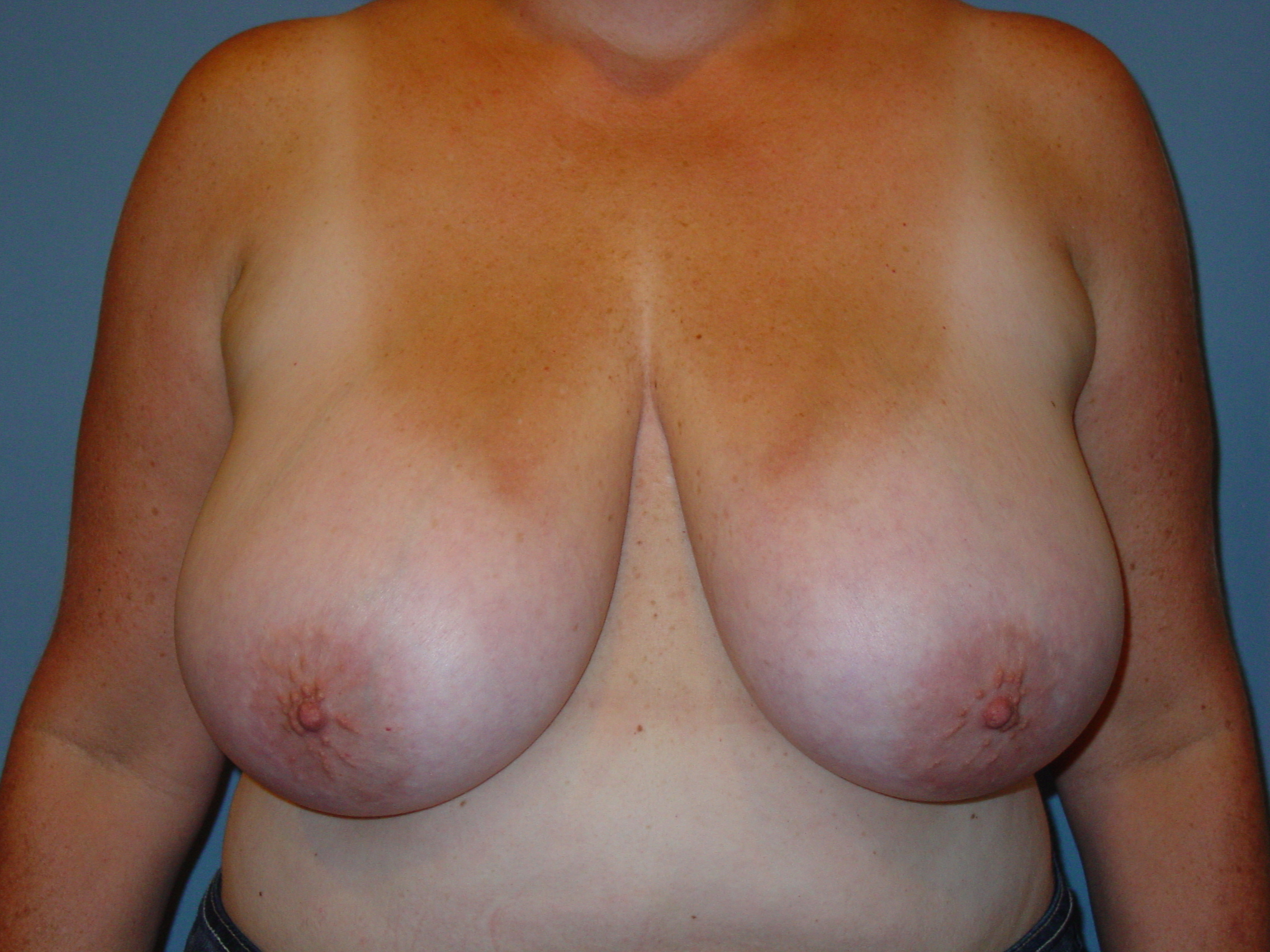 Breast reduction insurance coverage