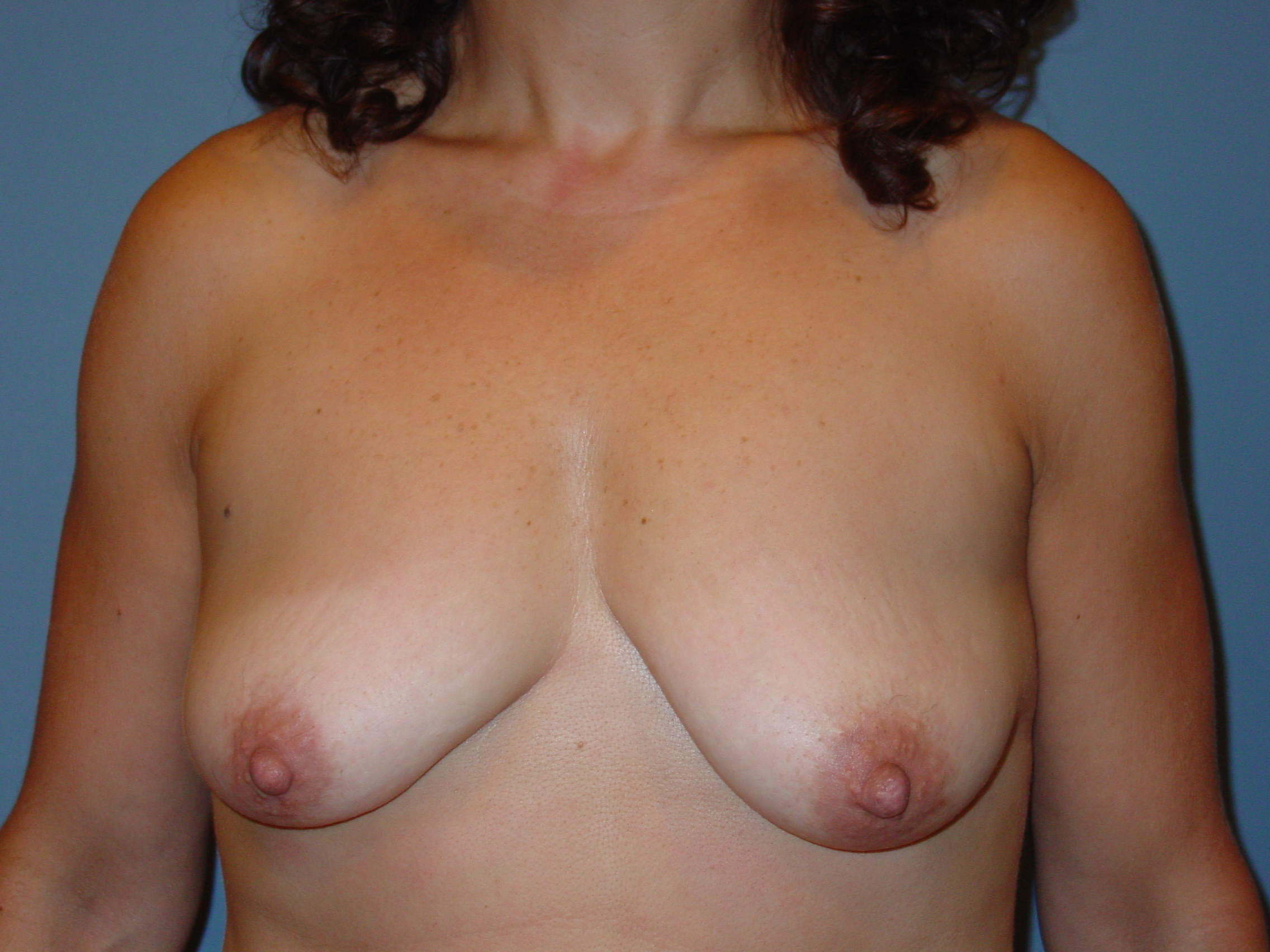 before and after photos breast lift